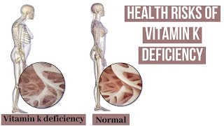 Know about these health risks of vitamin K deficiency
