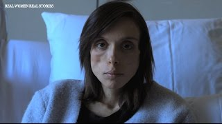 Anorexia Sufferer Stephanie Veloso Rodas Describes Her Devastating Battle