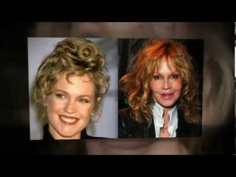 Melanie Griffith Plastic Surgery