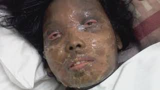 Air Elektron JEM Mengobati Stevens Johnson Syndrome