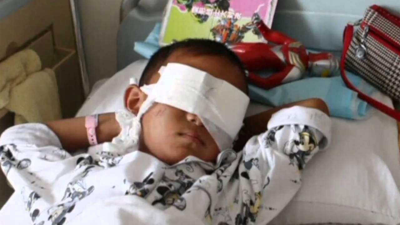 Eyes Boy China China Has Eyes Gouged Out