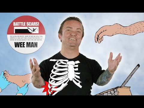 The Worst Injuries Of Wee Man's Career | Battle Scars