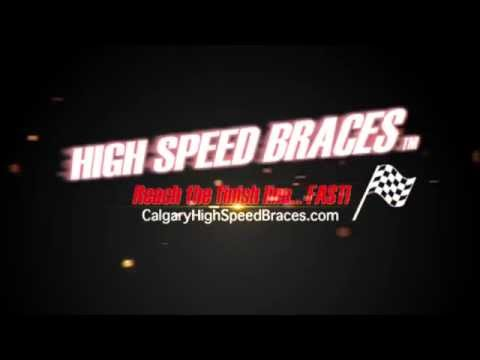 High Speed Braces... new turbo-charged video!