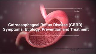 Gatroesophageal Reflux Disease (GERD)/GERD Symptoms, Etiology, Prevention and Treatment