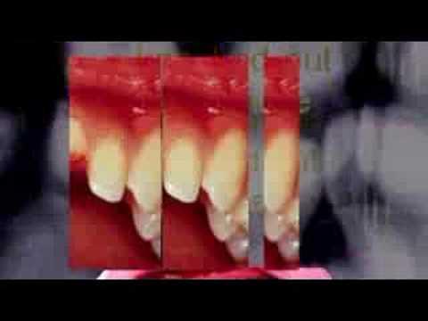 Dental Emergency-http://www.mytoothcaretips.com