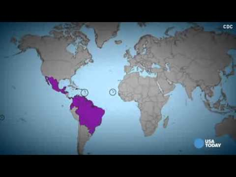 Sexually transmitted Zika virus reported in Texas