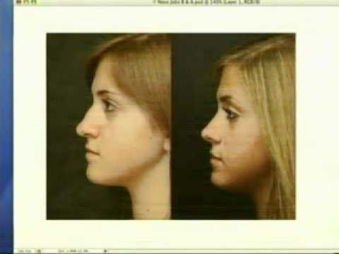 City Vives Metro-27 Beautiful Noses & Profiles..by Dr. Bentkover