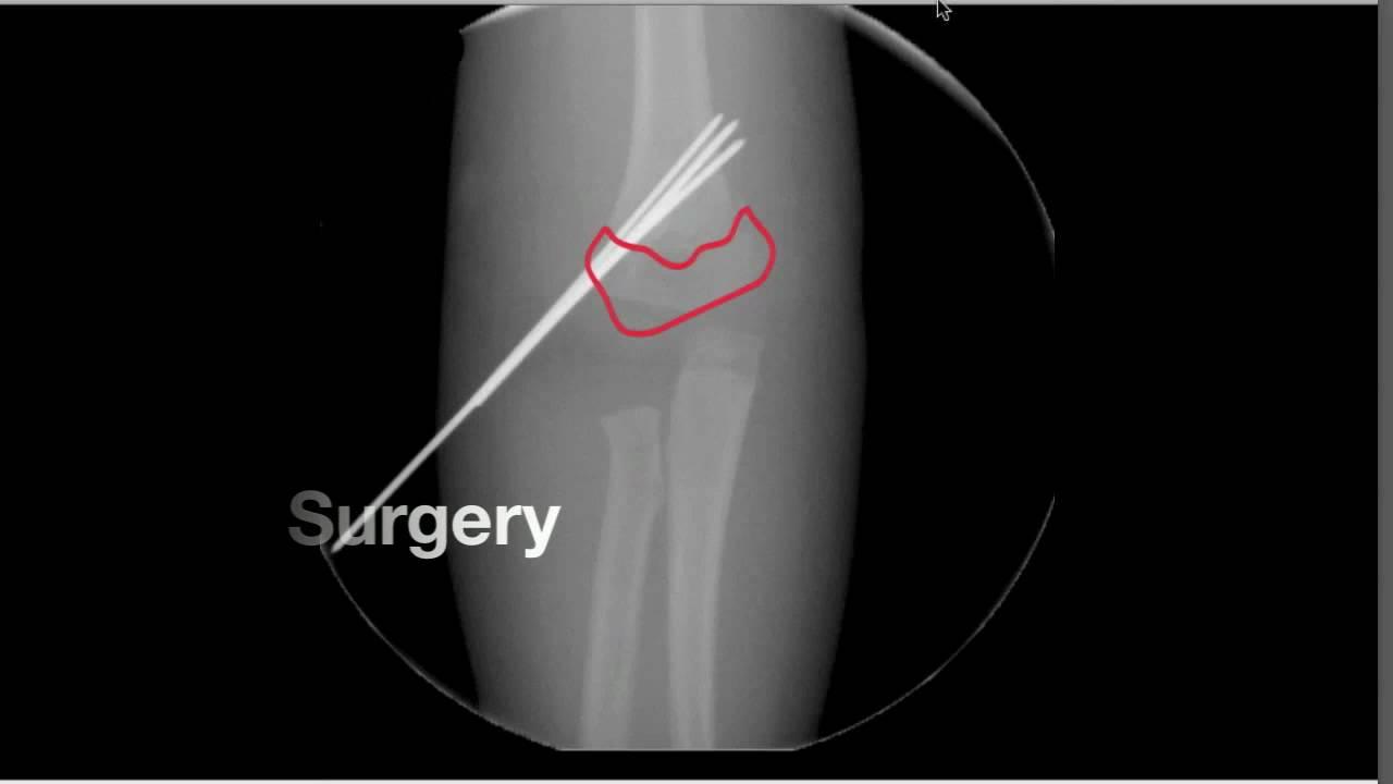 X Ray Broken Elbow Broken Elbow in Children