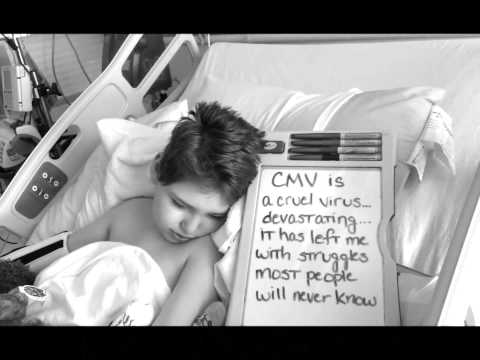 Beautiful faces of congenital CMV