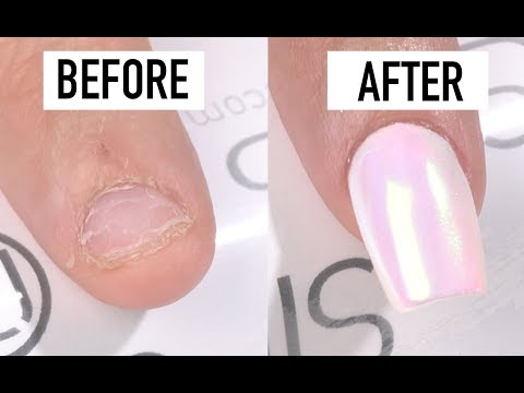 How To Fix Short Bitten Nails with Gel - Nails 21