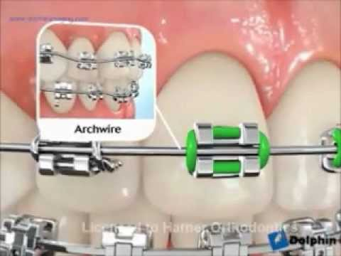 Dentist Bangkok Thailand VDO How we put Damon Q braces on your teeth