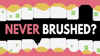 What Would Happen If You Never Brushed Your Teeth?