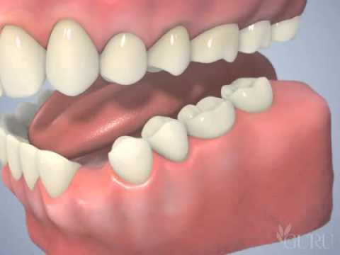 Punți dentare
