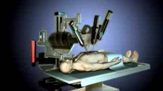 Medical Animation | Robotics Surgery