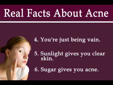 9 Real Facts About Acne
