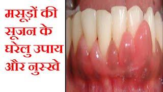 मसूड़ों की सूजन के घरेलु उपाय और नुस्खे | Gum Swelling Treatment At Home | Hindi Tips |Jyotir