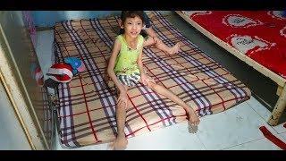 Sự sống mong manh của cô bé 8 tuổi, tay chân teo tóp do căn bệnh tim bẩm sinh