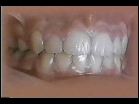 Kesling and Rocke Orthodontic Group--  timelapse film of treatment with the Tip-Edge Bracket
