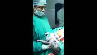 Cesarean Delivery Four Children