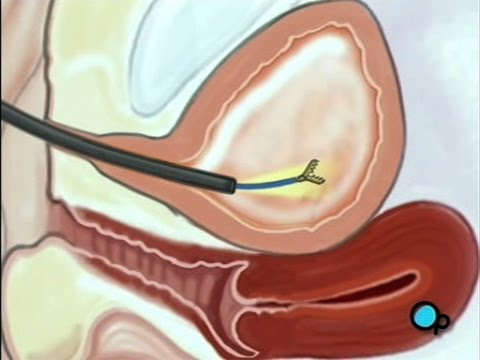 Intermittent Self-Catheterization Female PreOp® Patient Education