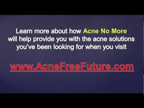Acne Solutions - Natural Acne Cures That Work