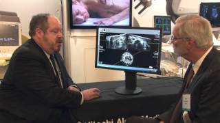 HITACHI SOFIA 2016 SonoWorld - 3D Automated Breast Sono Tomography