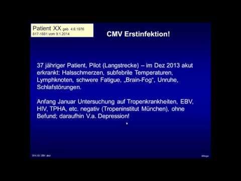 Dr  Wilfried Bieger: Akute Cytomegalie Virus (CMV)-Infektion bei einem Erwachsenen