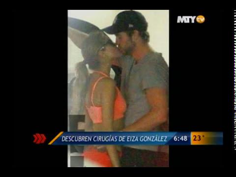 Las Noticias - Descubren cirugías de Eiza González
