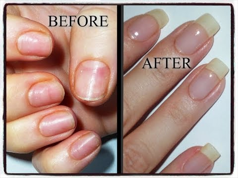 My Nail Journey-Growing Natural Nails after damage from Acrylics/Gels