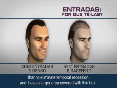 Boa preparação de cabelo para proteção contra o ferro