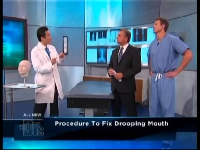 The Doctors - Dr. Youn Presents The Grin Lift (Corner Mouth Lift)
