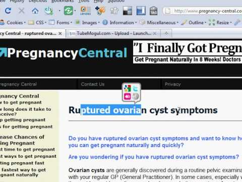 ovarian cyst burst symptoms