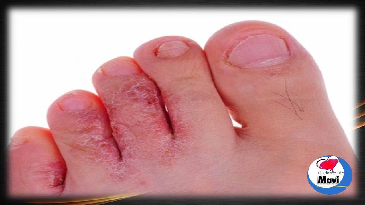 El tratamiento de las uñas encarnadas por el láser el precio