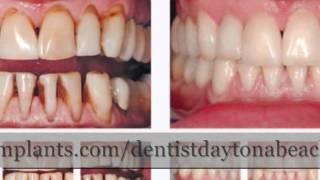 [New Smyrna Beach Dentist] Video