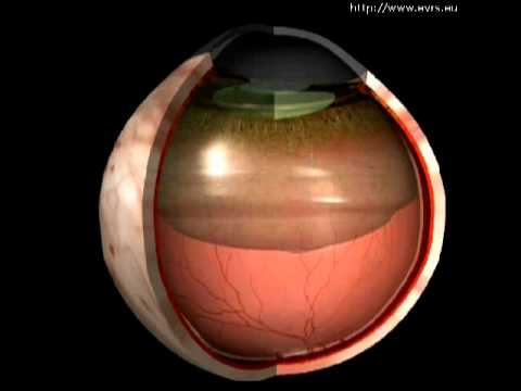 Posterior vitreous detachment  Wikipedia