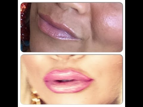 All About My Lip Injections!