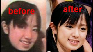 Download Lagu J-pop Girls Plastic Surgery Gratis STAFABAND