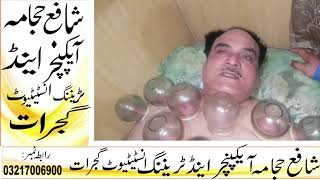 Fire Cupping At Shafay Hijama Clinic Gujrat