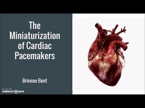 Miniaturization of Cardiac Pacemakers
