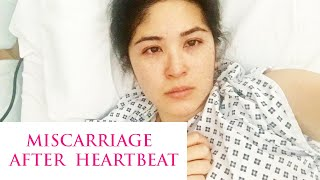 First Pregnancy, Miscarriage after Heartbeat, Multiple Fibroids | Sam Loves