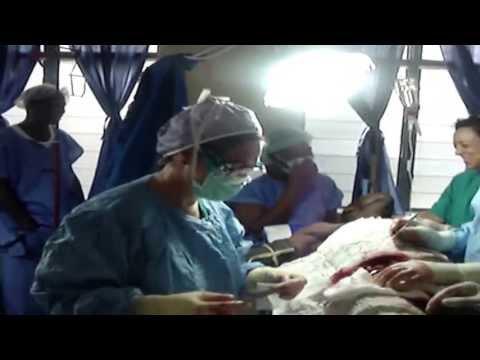 Cirujanos en Acción Nigeria