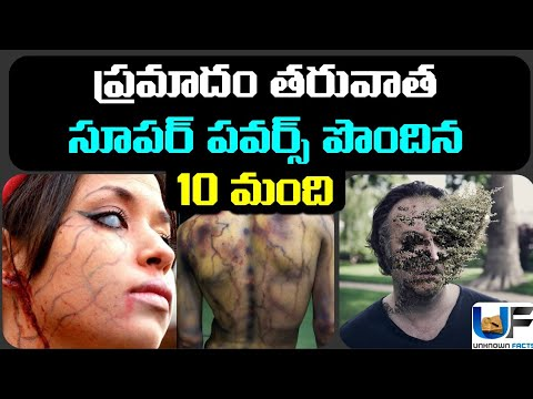 10 People Who Got Super Powers After a Bad Accident | Super Powers In Humans | Unknown Facts Telugu