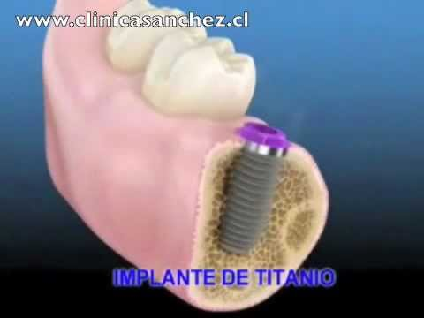 Implante Dental de titanio