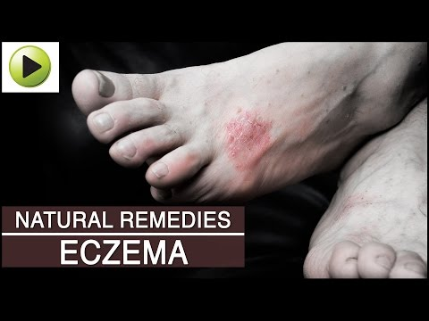 Skin Care - Eczema - Natural Ayurvedic Home Remedies