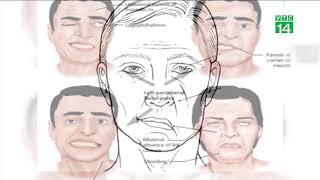 Méo miệng, mặt lệch sau 1 đêm vì thói quen trong ngày nắng nóng | VTC14