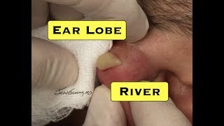 Giant Pus Filled Earlobe Redux With Comments
