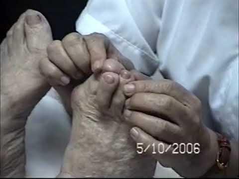 Jevial Protesis de Silicona (primera parte)