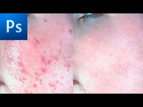 Photoshop Tutorial: Remove Acne in Seconds! -HD- Video