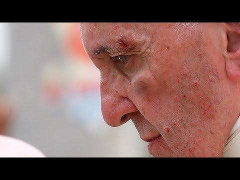El papa Francisco se golpea el rostro en el papamóvil