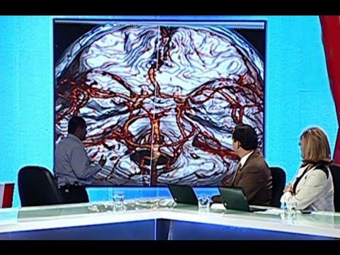 Médico analiza las tomografías de Edita Guerrero y niega que haya sido víctima de violencia